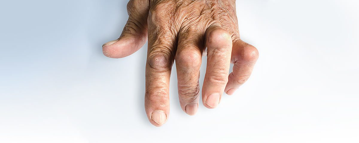 Psoriatic Arthritis – Pathophysiology 101