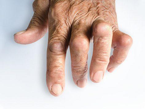 RNP 4.02 - Psoriatic Arthritis - Pathophysiology 101